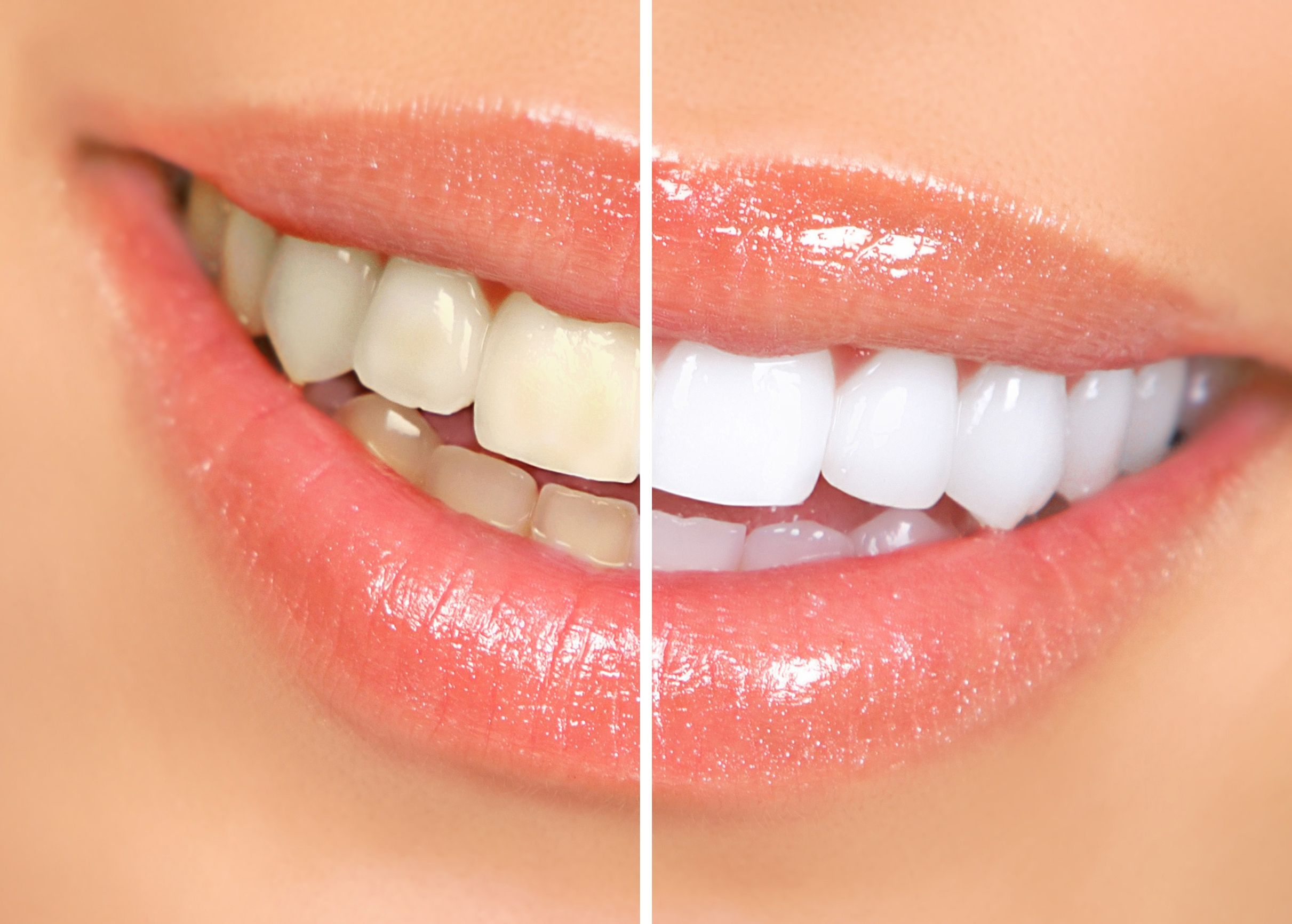 How Individuals Can Get The Best Teeth Whitening In HI