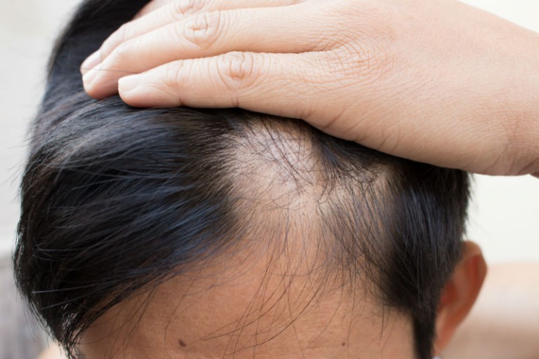 Improving Your Appearance by Getting an FUE Hair Transplant in New York